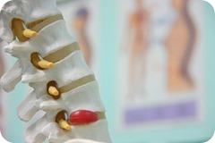 prolapsed-disc-spine
