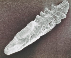 Demodex-mite-scanning-electron-microscope-image-2