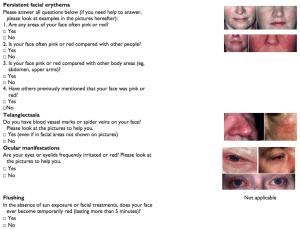 rosascreen-redness-blood-vessels-ocular