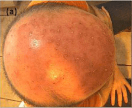 Probiotics and Oracea for Scalp Rosacea