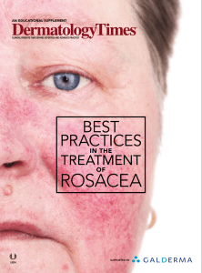 best-practice-treating-rosacea