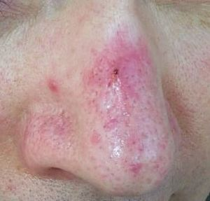 Rosacea Pictures Papules Pustules Red Nose And Acne