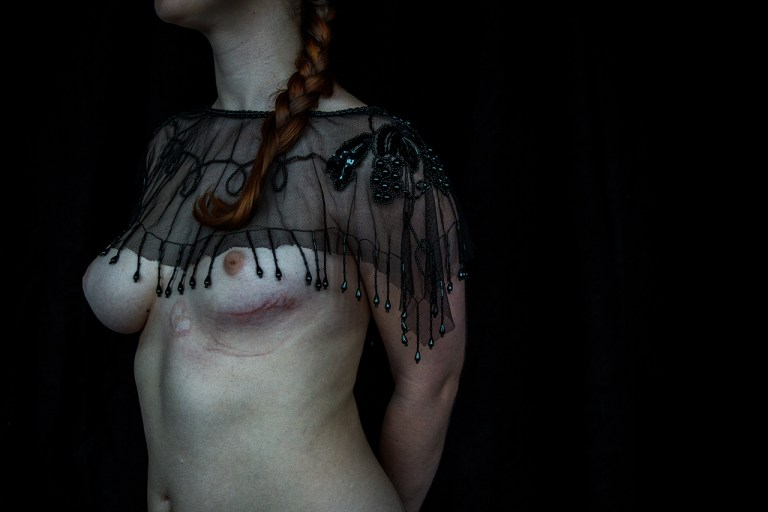 Elena Helfrecht - The girl with scales under her skin-1
