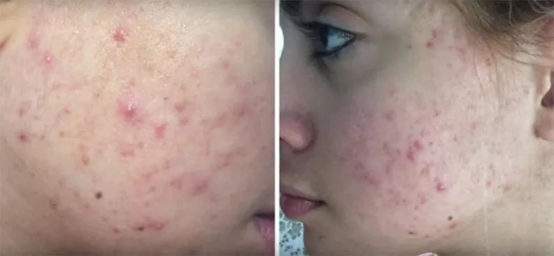 acne scar removal product