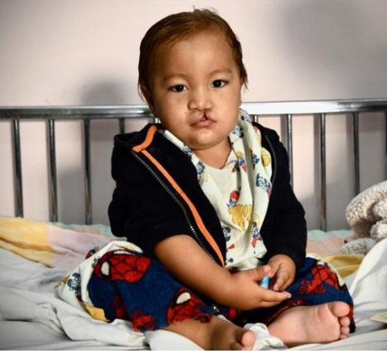 This child received medical care for a cleft lip through a recent Rotary Club of Portsmouth's Rotaplast mission to Guatemala. Photo: Submitted