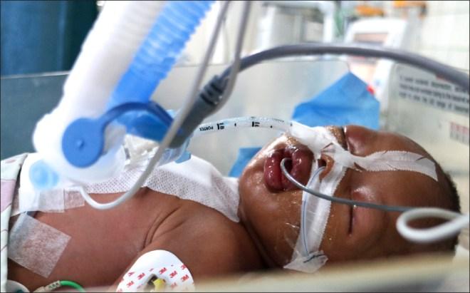 A Nigerian child who underwent an open-heart surgery.