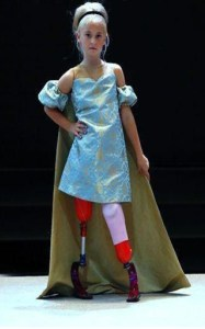 Catwalk with prosthetic limbs Daisy-May Demetre (9) from Birmingham was born with fibular hemimelia, where part or all of the bone in her lower leg is missing. Her legs were amputated when she was just 18 months old, after which she learnt to walk with prosthetic legs. Daisy caught the attention of the fashion world as she walked the ramp at the Eiffel Tower in Paris for a luxury French children's brand. This was her third catwalk, after two other fashion shows at New York and London.