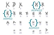 PKD chromosomes from PKD Foundation