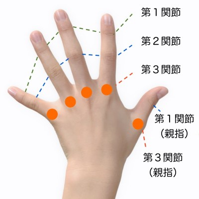 指の障害の労災認定
