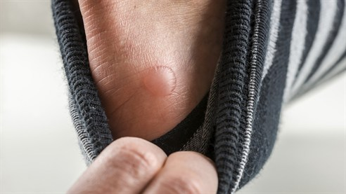 Blisters