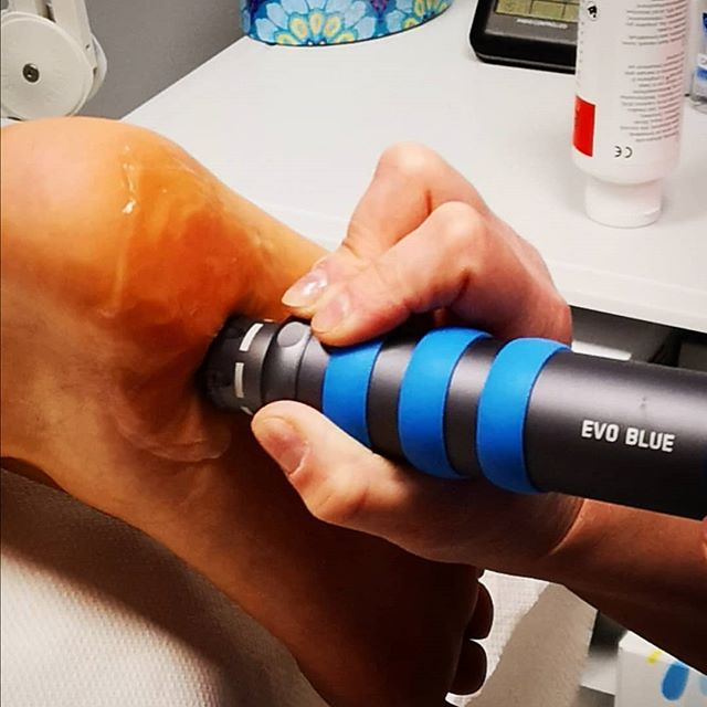 Shockwave Therapy at Cambridge Podiatrist