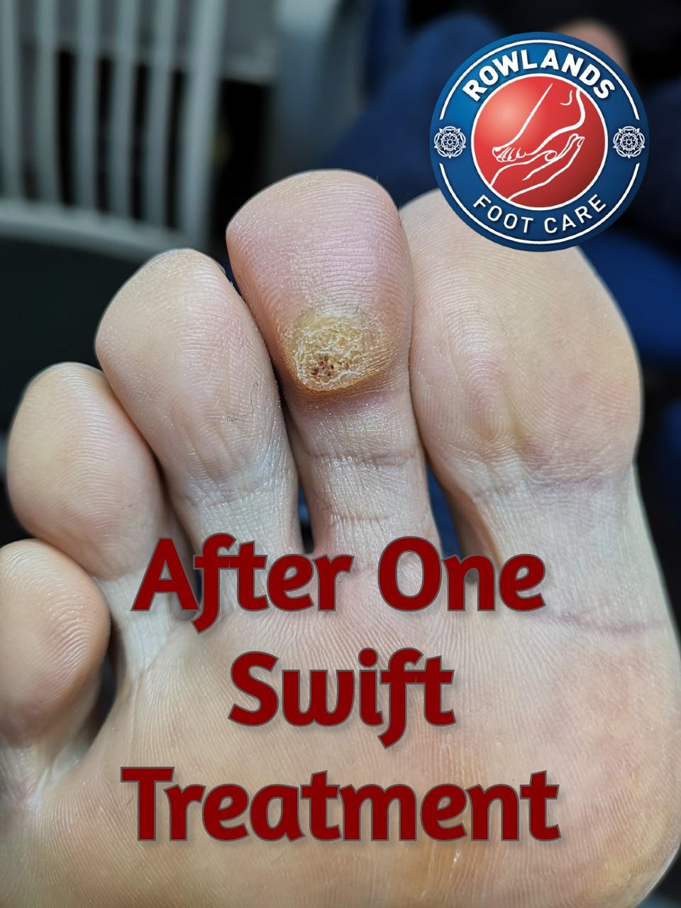 1 Amazing Swift Verruca Treatment Cambridge 5