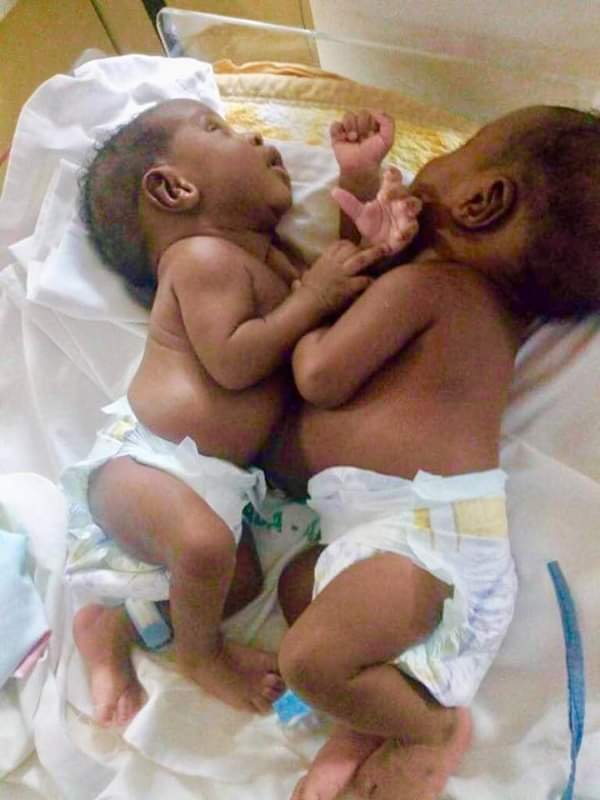 Nasarawa conjoined twins: Minister hails medical team
