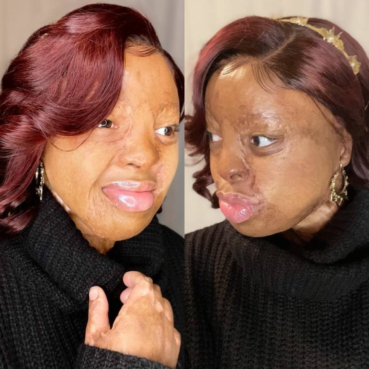 Kechi Okwuchi excited as she wears earrings again after losing her earlobes in the Sosoliso aircrash 15 years ago (photos)