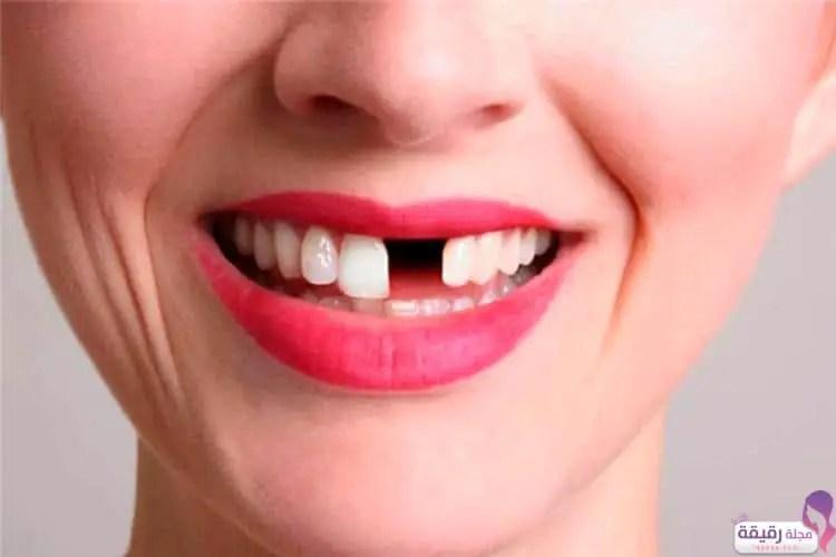 تفسير حلم سقوط الاسنان في اليد بالتفصيل مجلة رقيقة