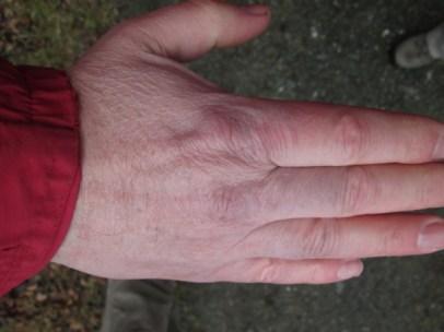 Seit wann bekomme ich so blau gefrorene Hände (in Wirklichkeit sah es bedrohlicher aus)