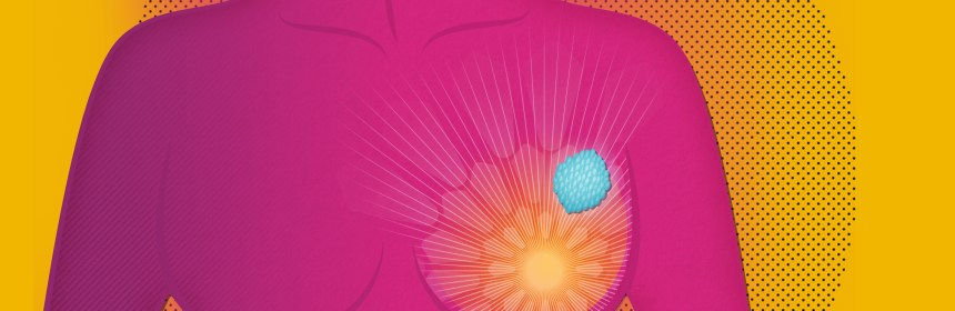 El cáncer de mama impactó a 2.3 millones de pacientes en el 2020