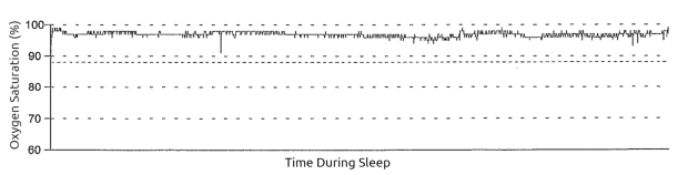 overnight pulse oximetry tracing