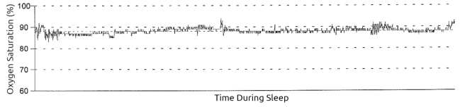 overnight pulse ox desaturation