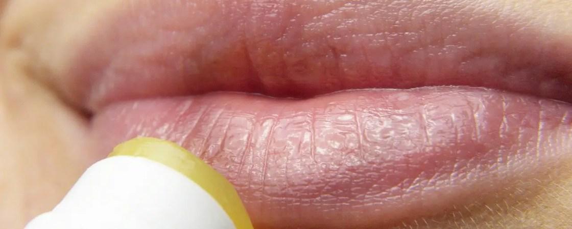 קינמון לשפתיים