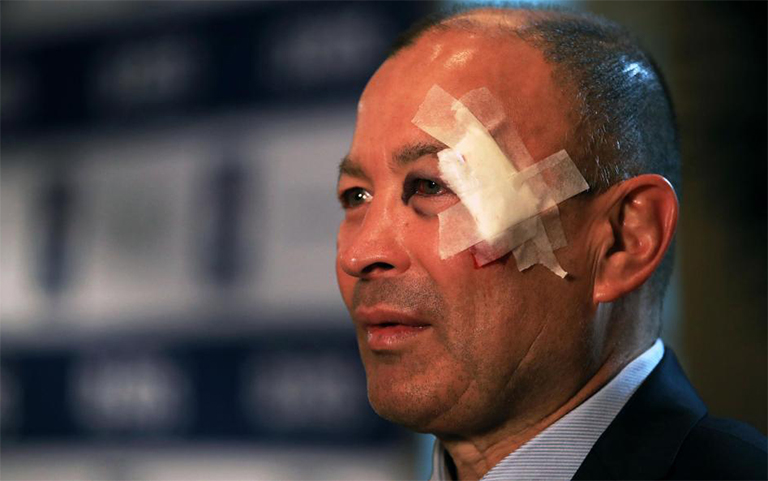 Scottish Rugby 'appalled' by fans who abused Eddie Jones