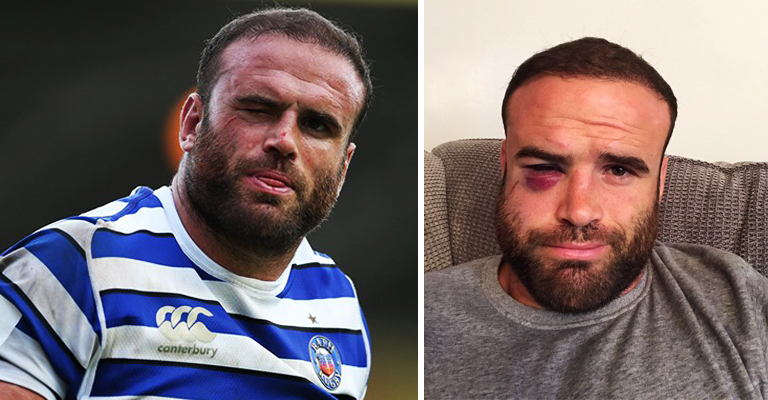 It Turns Out Jamie Roberts' Facial Injury Is Even Worse Than It Looks