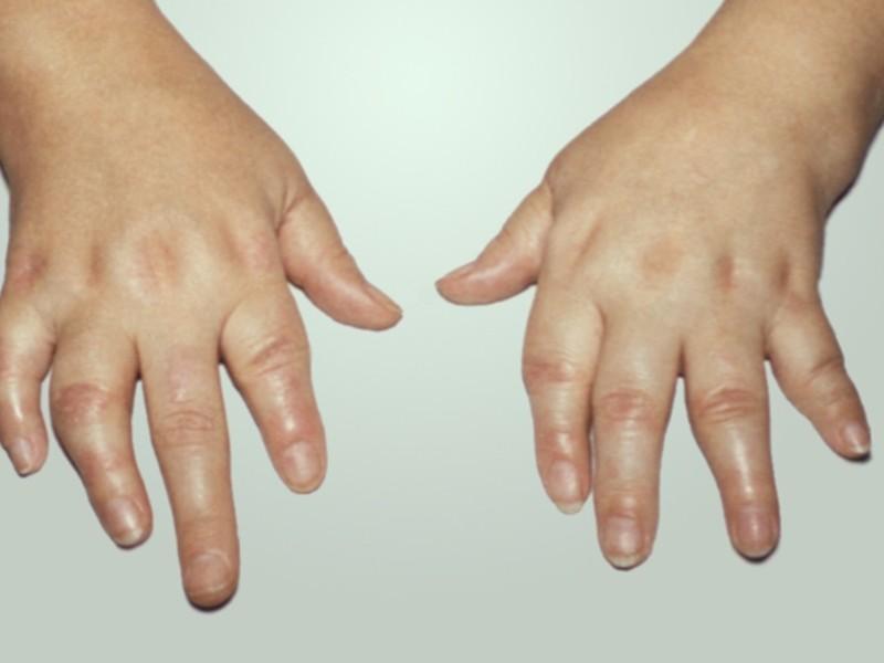Лечение нпвс артрита пальцев рук фото