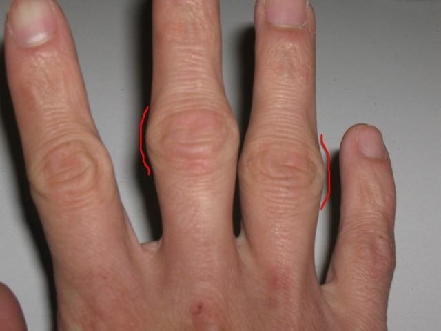 Что есть при артрите пальцев рук фото