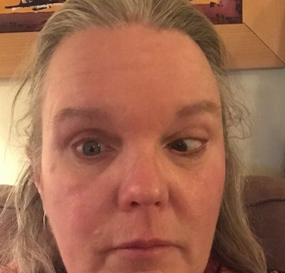 oogprothese