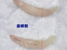 遺残乳歯(犬歯)
