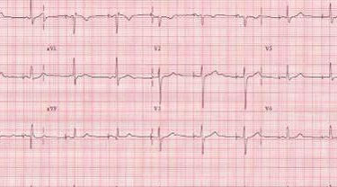 DDD pacing in sick sinus syndrome