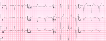 Intrinsic P wave followed by paced QRS wave