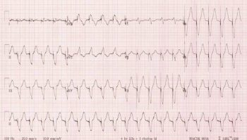 Pacemaker-Mediated-Tachycardia-LITFL-765x436