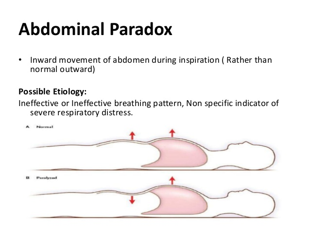 COPD paradoxical breathing