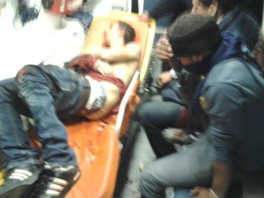 Един ранен в линейка. Това се оказа, че е Алаа Абдул Хади... (виж по-долу). По последни данни, ранените били 105 (кум полунощ българско време). Този брой е опроверган от неправителствени източници, които говорят за 500 ранени поне.
