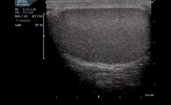 Epidermoid Cyst (Ultrasound)