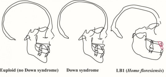Profiles of the midline of the skull as seen in an x-ray or CT scan for people with and without Down syndrome as well as LB1, the type specimen of Homo floresiensis. The differences between the two groups of humans are minor compared to the very distinct shape of LB1.