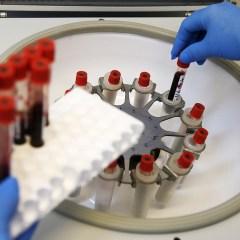 «Известия»: все регионы РФ к концу мая получат препараты для терапии при ВИЧ