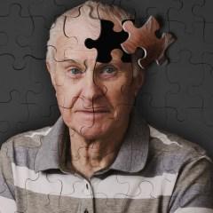 Ученые: каждый пятый россиянин склонен к развитию болезни Альцгеймера