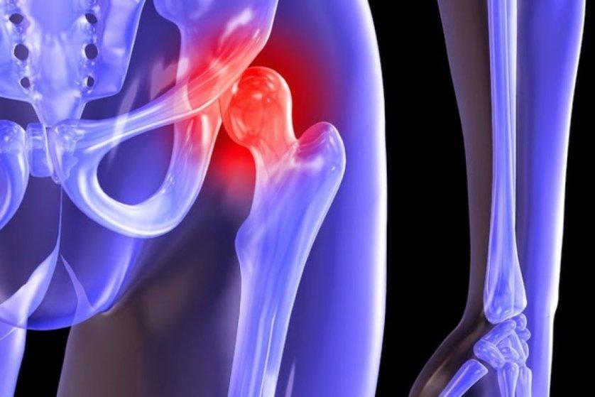 Боли после эндопротезирования тазобедренного сустава