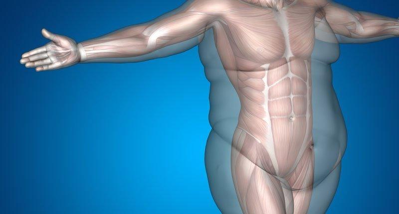 Человек с ожирением