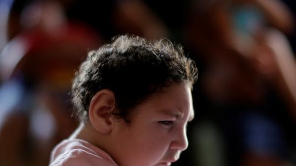زيادة في عدد المواليد بعيوب خلقية في أمريكا بسبب زيكا