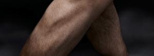 Ryan Kesler's leg