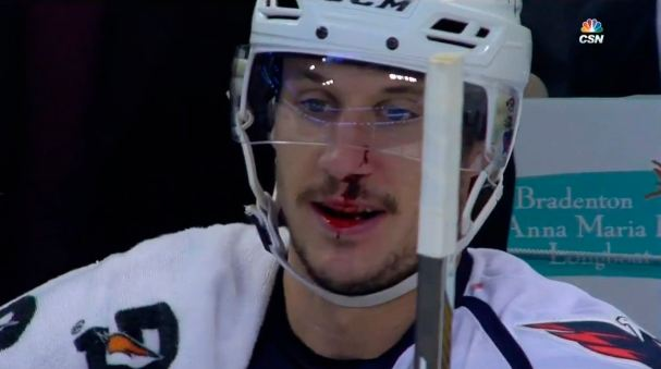 jay-beagle-bloodied-beak