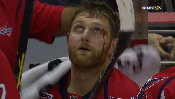 karl-alzner-eye
