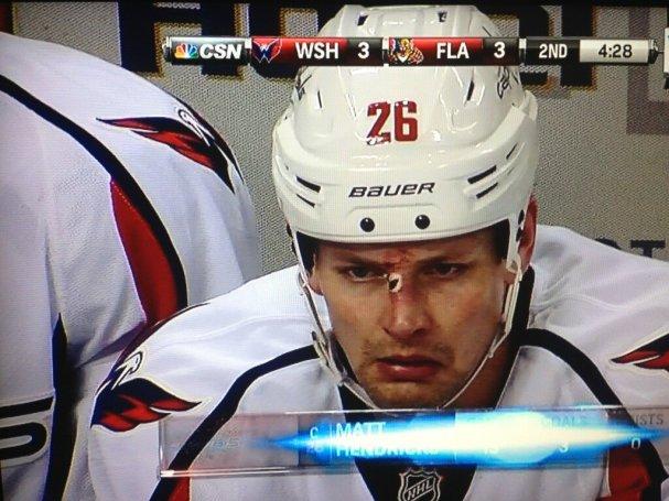 Matt Hendricks broken nose