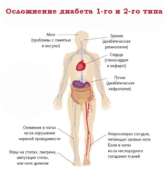 Сахарный диабет: симптомы, признаки.