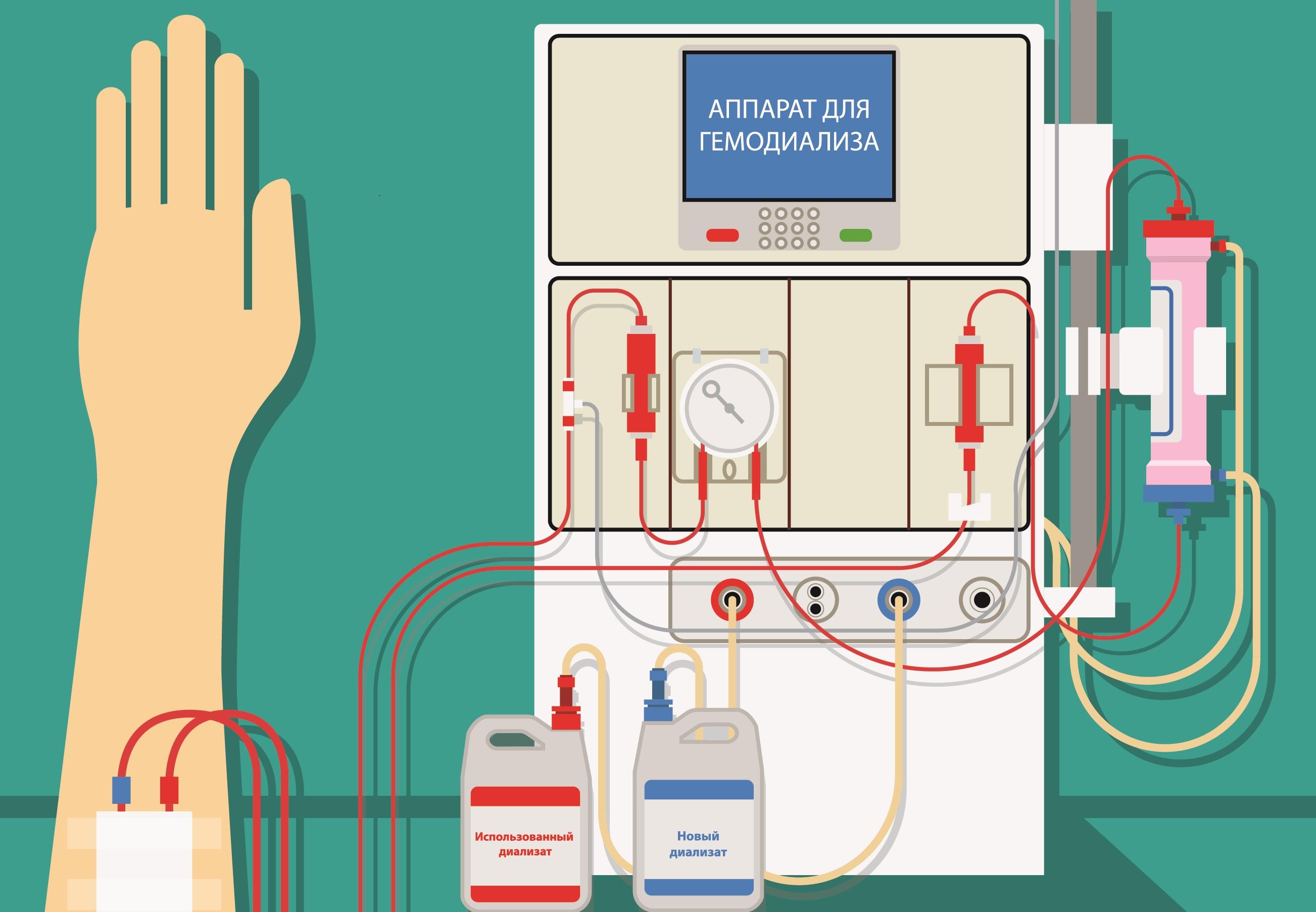 аппарат искусственной почки гемодиализ