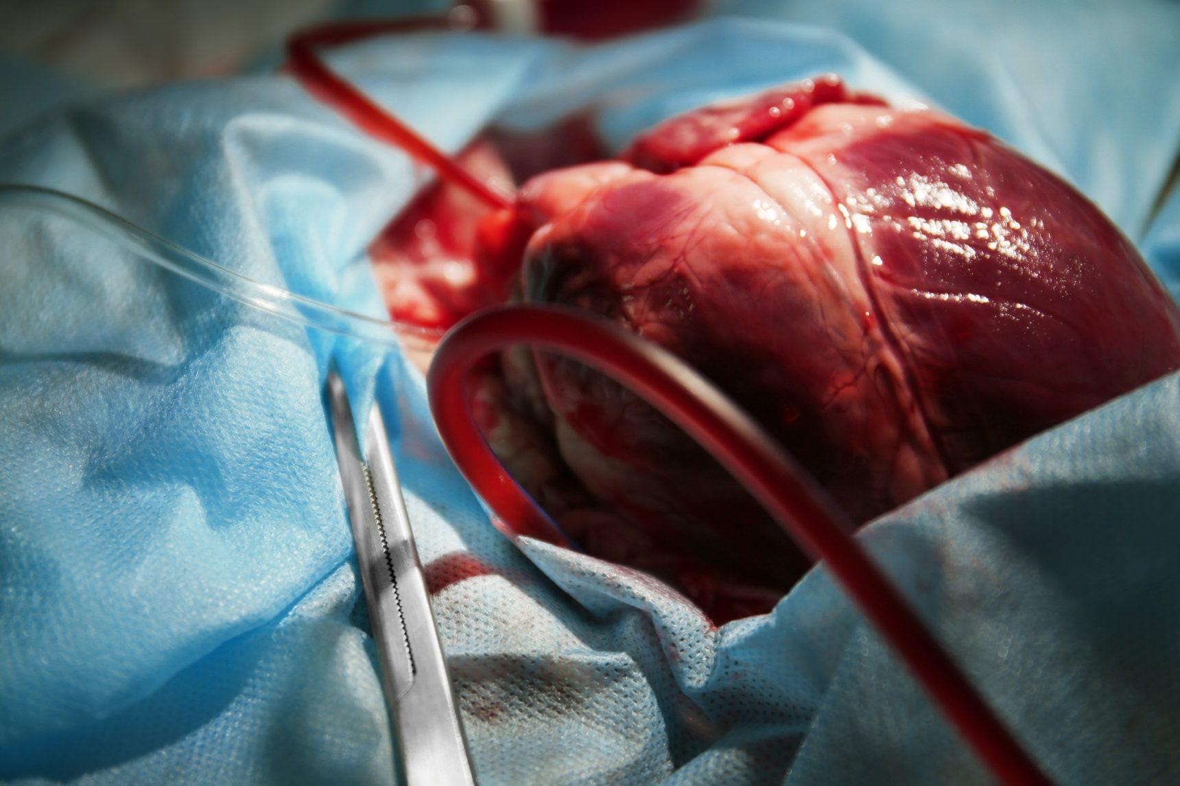 искусственное сердце человека