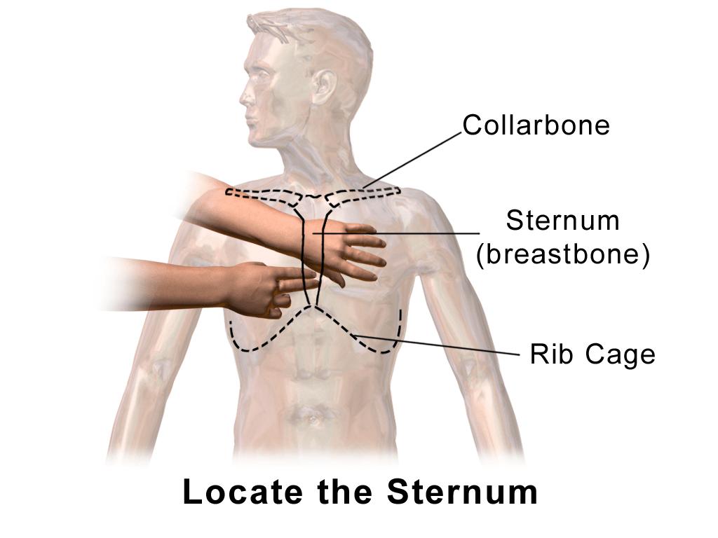 Lower Sternum Lump